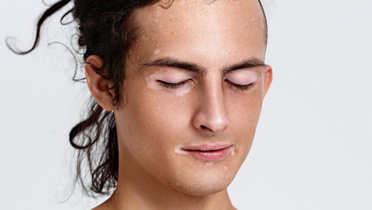Nieuwe immuuntherapie tegen vitiligo