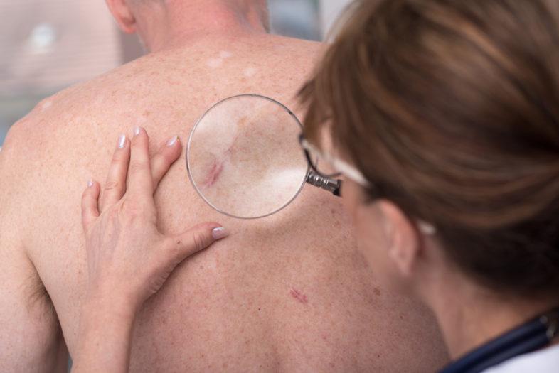 Een tweede basaalcelcarcinoom