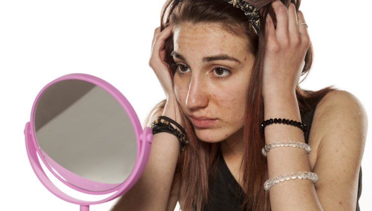 Isotretinoïne verhoogt de kans op een depressie niet