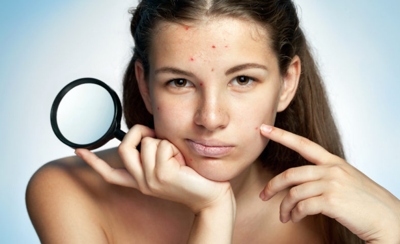 acne en depressie