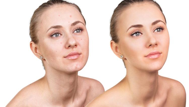 Cosmetische behandelingen mogen samen met isotretinoïne