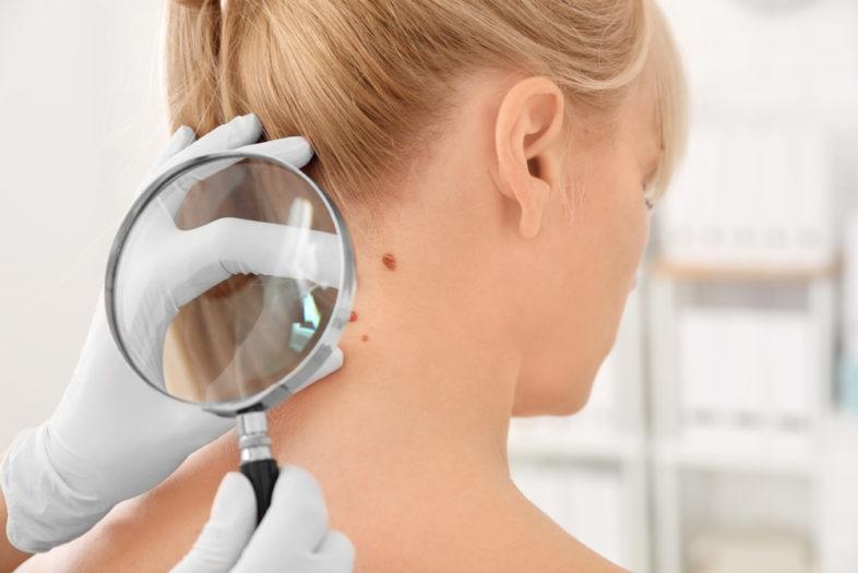 Snel opereren vergroot overlevingskans bij melanomen