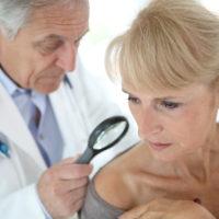 Hydrochloorthiazide en huidkanker