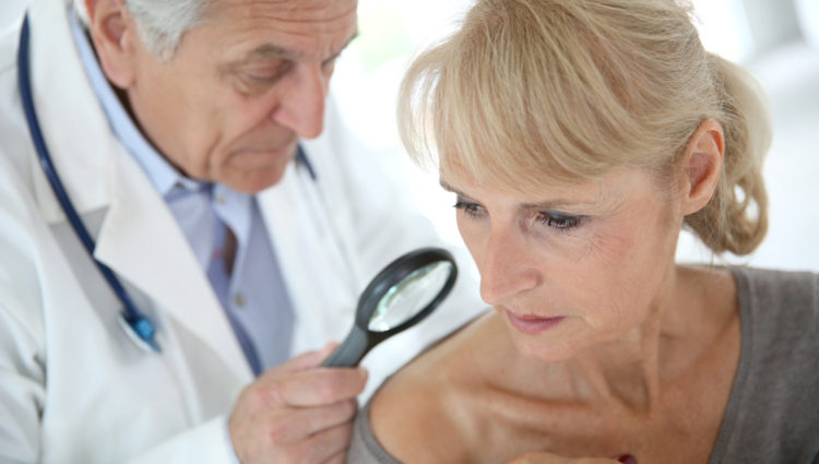Hydrochloorthiazide verhoogt de kans op huidkanker