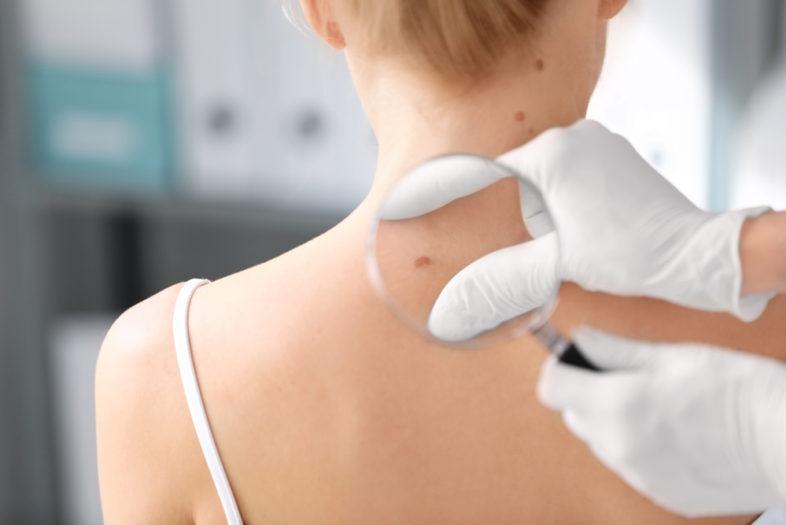 Gebruik van aspirine vergroot overlevingskans bij patiënten met melanoom