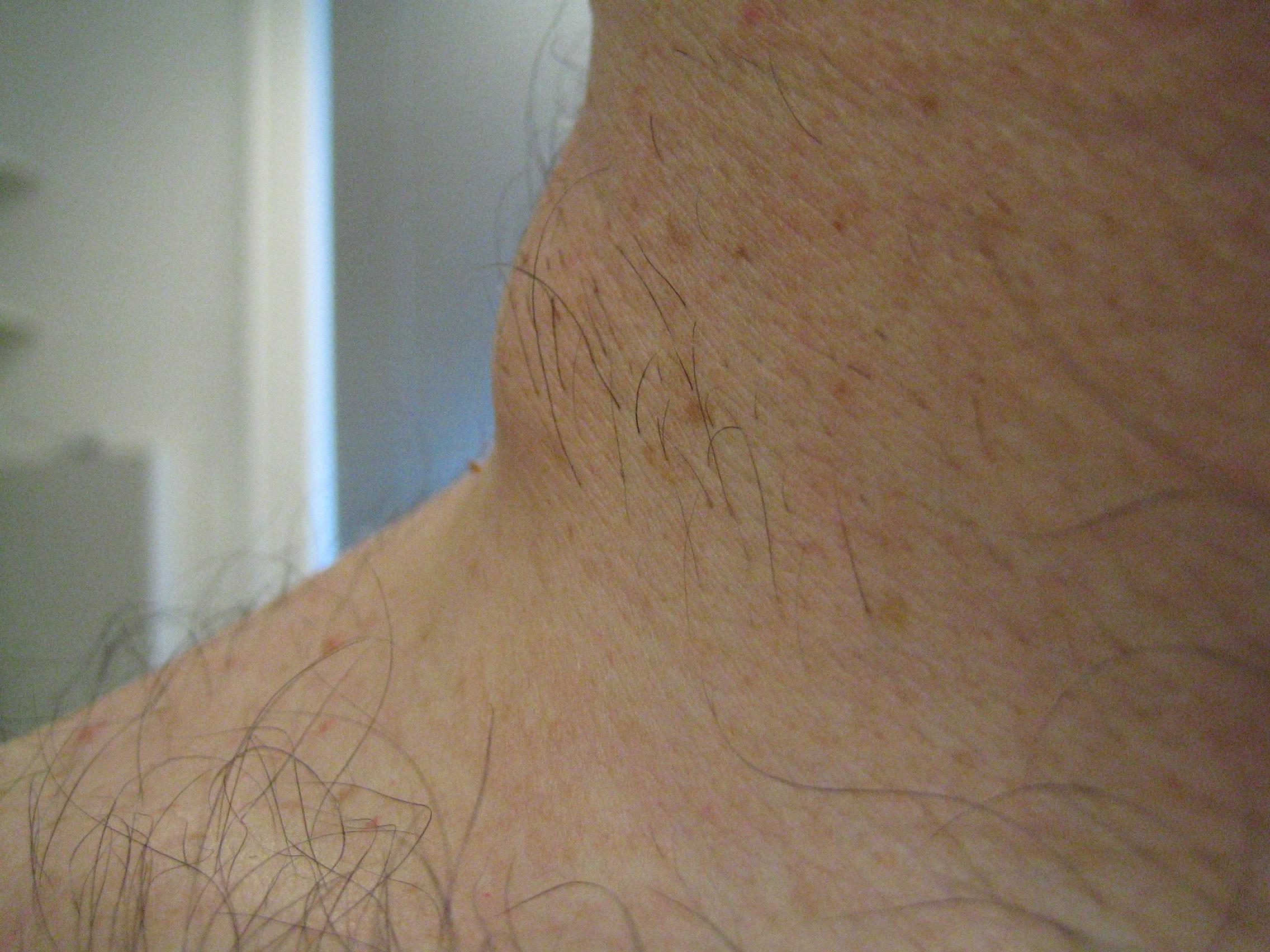 Lymfeklier uitzaaiing bij melanoom