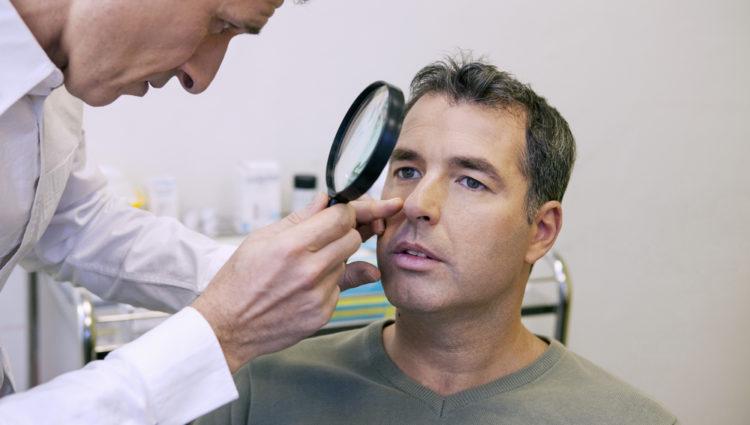 HIV-patiënten hebben meer kans op huidkanker