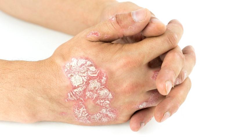 psoriasis handruggen