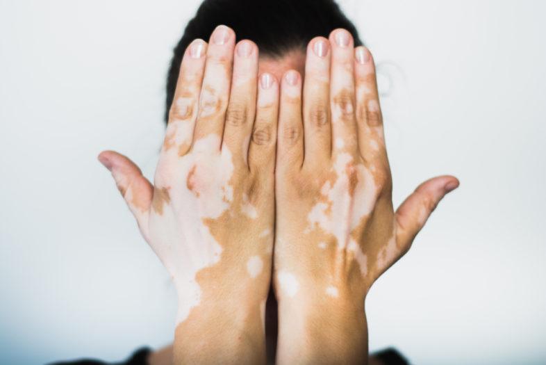 Vaker spontane abortussen bij zwangere vitiligo patiënten