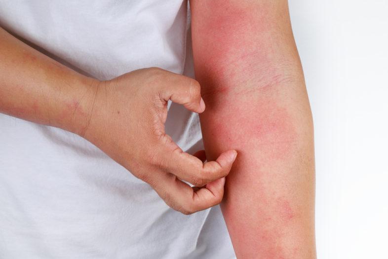Hoge dosis vitamine D helpt tegen atopisch eczeem