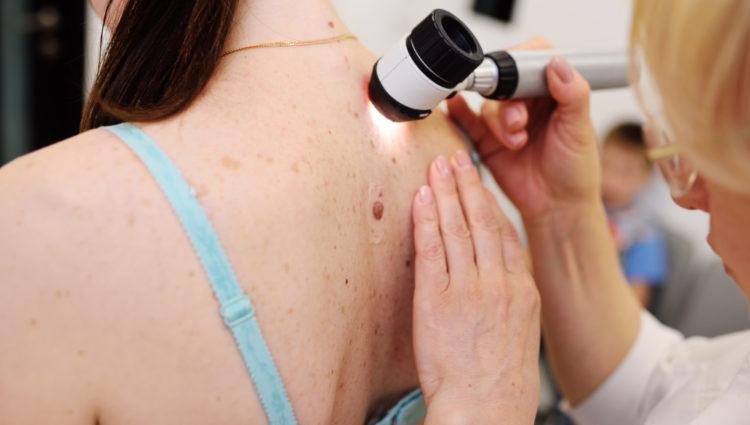 De vele gezichten van het melanoom