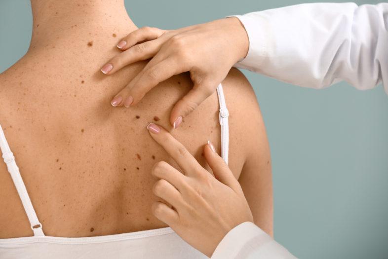 Hoe meer moedervlekken, hoe dodelijker het melanoom