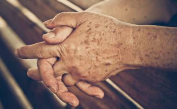 Ouderdomsvlekken handruggen